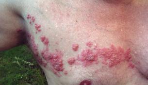 apotheken-wissen.de: Gürtelrose, Herpes zoster, Herpesviren, Varizella-Zoster-Virus, VZV, Windpocken