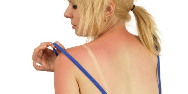 apotheken-wissen.de: Sonnenbrand vorbeugen und was tun bei Sonnenbrand?