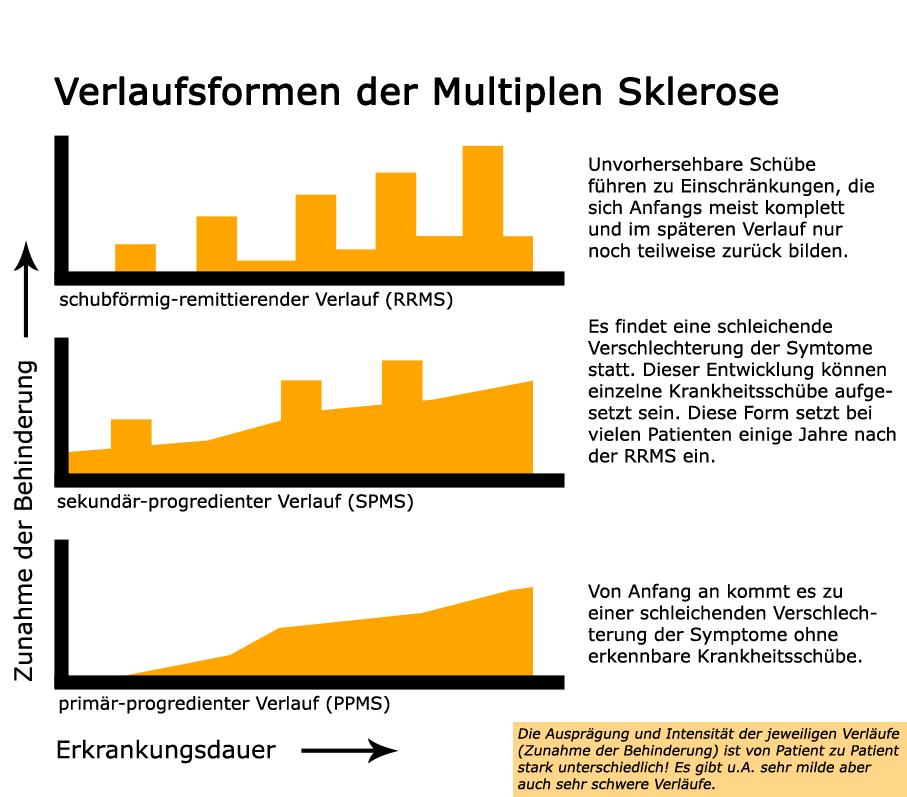 apotheken-wissen.de: Verlaufsformen der Multiplen Sklerose