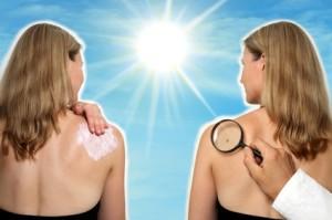 apotheken-wissen.de: Heller Hautkrebs durch UV-Strahlung