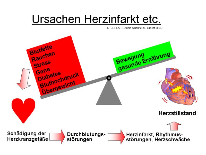 Herzinfarkt Ursachen: So entsteht ein Herzinfarkt