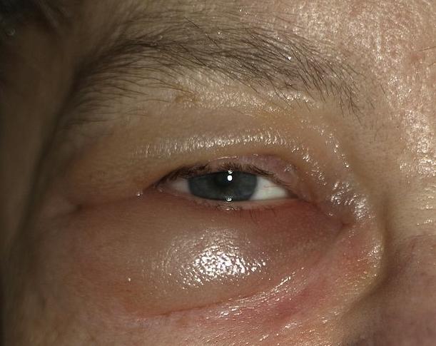 apotheken-wissen.de: ein Quincke-Ödem am Augenlid