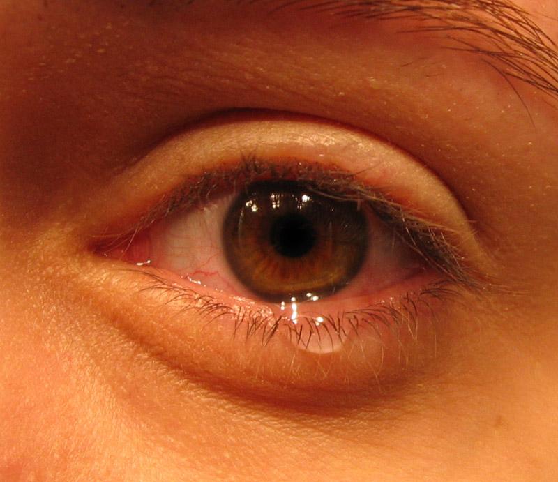 Augengrippe im Umlauf: Hygienemaßnahmen verhindern die Ansteckung!
