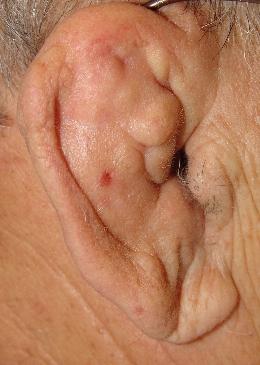 Blumenkohlohr: unbehandelte Blutergüsse verformen die Ohrmuschel