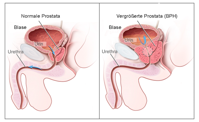 Benigne Prostatahyperplasie - apotheken-wissen.de