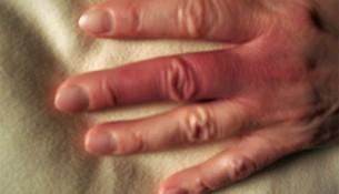 Finger mit Morbus Raynaud