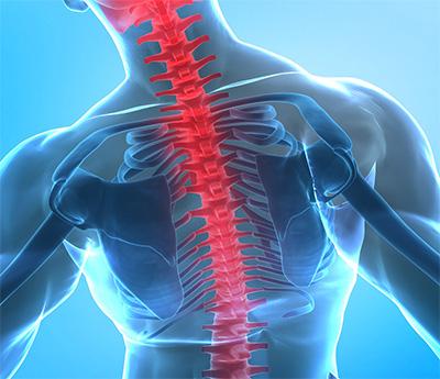 Die Wirbelsäulenvermessung kann die bisher unerkannte Ursachen für Rückenschmerzen finden.