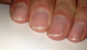 Wenn die Nägel splitterm. sieht das meist nicht nur ungepflegt aus, sondern ist häufig auch ein Zeichen dafür, dass dem Körper etwas fehlt.
