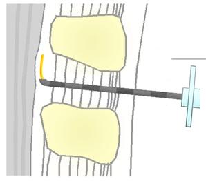 Skizze einer Periduralanästhesie (PDA) - apotheken-wissen.de