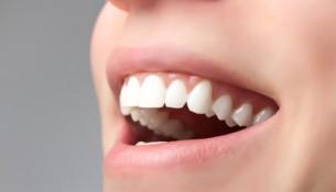 Schöne Zähne - apotheken-wissen.de
