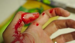 Blutgerinnungsstörung von-Willebrand-Syndrom - apotheken-wissen.de