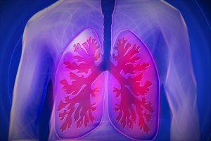 Eine Lungenembolie kann vor allem nach stundenlanger Sitzhaltung eine Lebensbedrohliche Auswirkung sein*