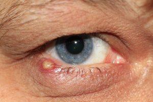 Ein Gerstenkorn ist in der Regel zwar harmlos, kann jedoch sehr unangenehme und schmerzhaft Nebenwirkungen haben*