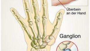 Ganglion / Überbein an der Hand - apotheken-wissen.de