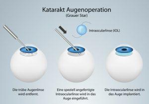 Katarakt Augenoperation gegen den Grauen Star - apotheken-wissen.de