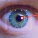Augenlasern - apotheken-wissen.de