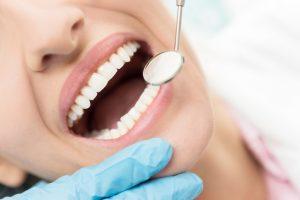 Untersuchung beim Zahnarzt - apotheken-wissen.de