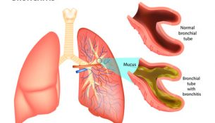 Bronchitis-Infographik
