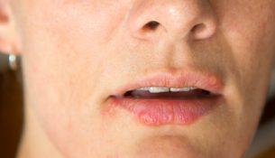 Lippenherpes - apotheken-wissen.de