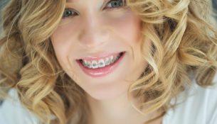 Zahnspange für Erwachsene - apotheken-wissen.de