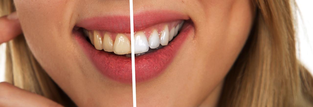 Gepflegte und ungepflegte Zähne