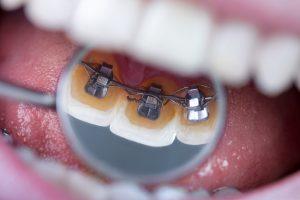 Zahnkorrektur mit lingualer Zahnspange