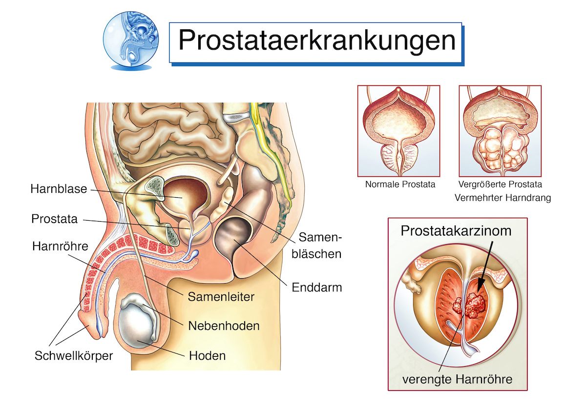 Prostataerkrankungen