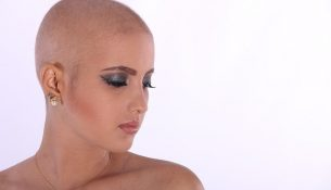 Haarausfall durch Chemotherapie