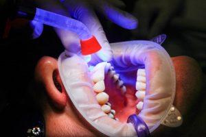 Zahnarzt-Behandlung